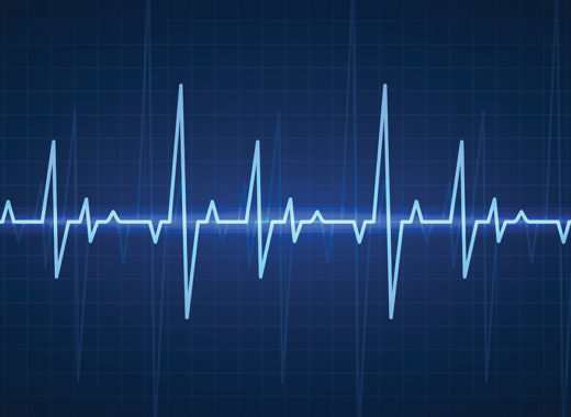 Ecg. Sinusoidal pulse lines, frequency heartbeat stress testing life, monitor with signal graphic pulsing, cardiogram heartbeat logo vector set
