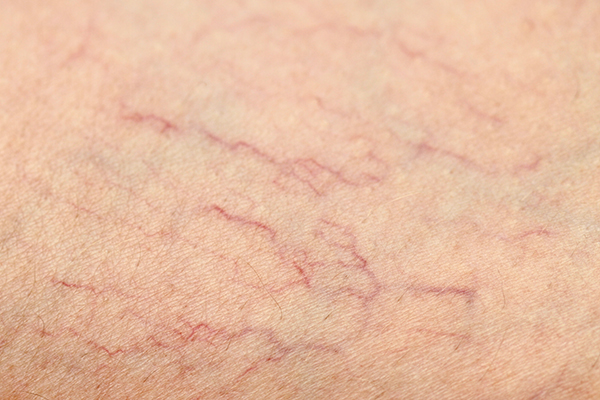Bloomfield Vein & Vascular spider vein treatment
