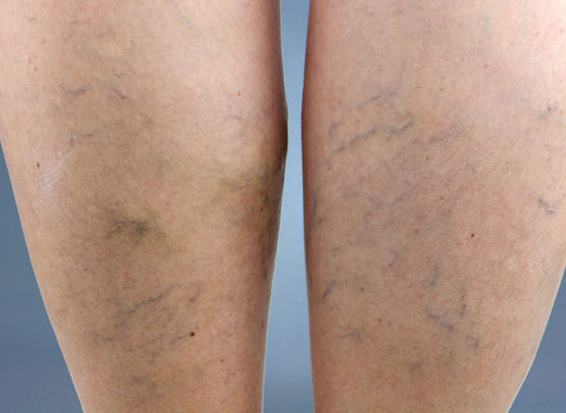 Spider and varicose vein treatment